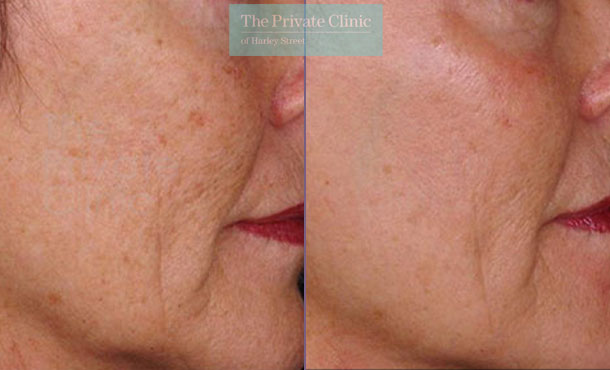 pearl laser resurfacing before after photo results 035TPC