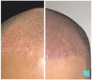 scalp micropigmentation hair loss before after results 005