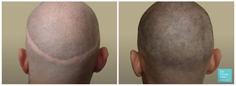 scalp micropigmentation hair loss before after results 006 1