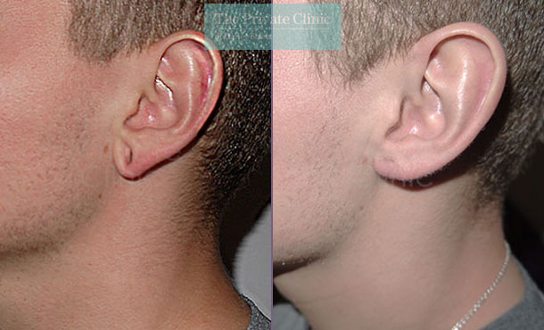 split stretched earlobes tribal ear repair before after photo results mr miles berry 017MB