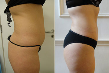 stories micro lipo buttock fat transfer kasia the private clinic