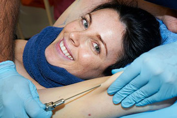 stories micro lipo lynne hyland the private clinic