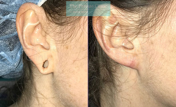 stretched ear lobe repair tribal ear before after photos results mr miles berry 016MB