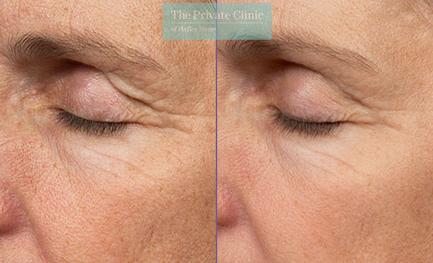 thermage skin tightening before after photo sideview results 091TPC
