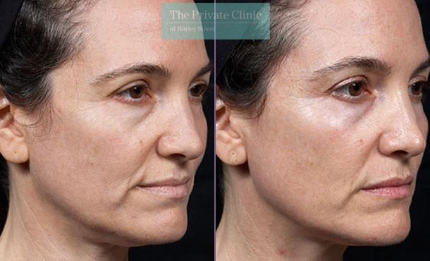 thermage skin tightening before after photos results 090TPC
