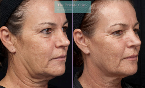 thermage skin tightening london before after photo results 092TPC