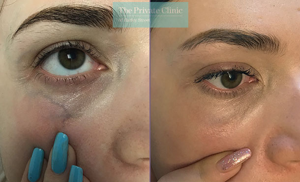 thread spider veins under eye removal before after photos maria narsoomamode left 002MN