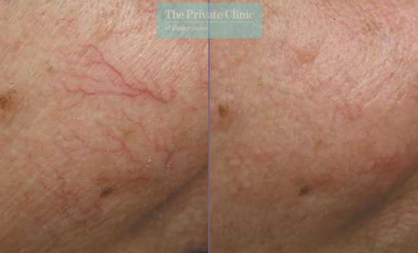 thread veins on face before after photo results uk 032TPC