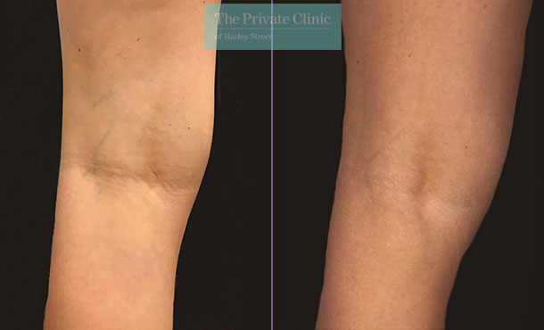 thread veins spider veins removal legs before after photos maria narsoomamode far 001MN