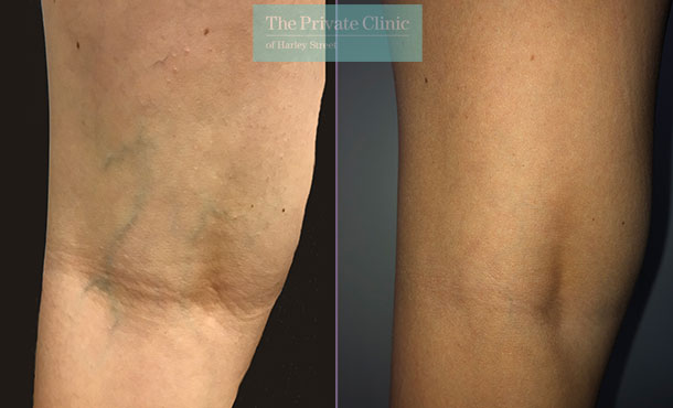 thread veins spider veins removal legs maria narsoomamode close 001MN