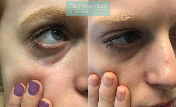 thread veins spider veins removal under eye veins maria narsoomamode left 003MN 1