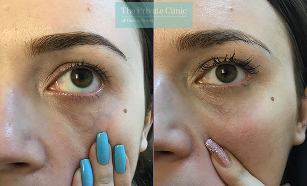 thread veins spider veins removal under eye veins maria narsoomamode right 002MN
