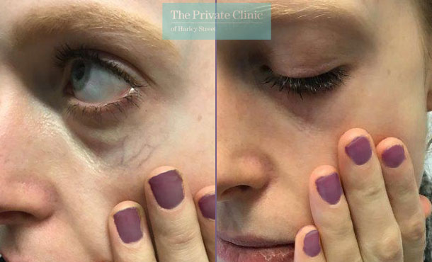 thread veins spider veins removal under eye veins maria narsoomamode right 003MN