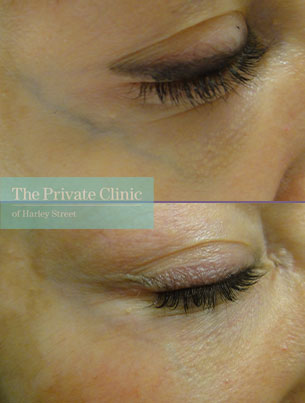thread veins under eyes before after photo results private clinic 023TPC