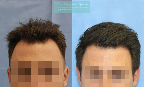 uk hair clinic fue hair transplant before after photo results dr raghu reddy front 107RR