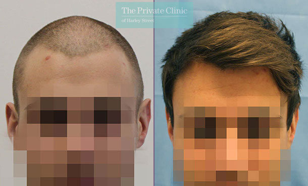 uk hair clinic fue hair transplant before after photos dr raghu reddy 030RR