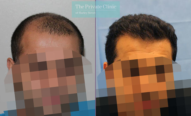 uk hair clinic hair transplant before after photos results dr raghu reddy 053RR