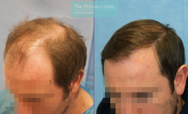 uk hair clinic london fue hair transplant before after photos dr raghu reddy side 093RR