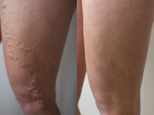 varicose vein evla before after 300x225 1