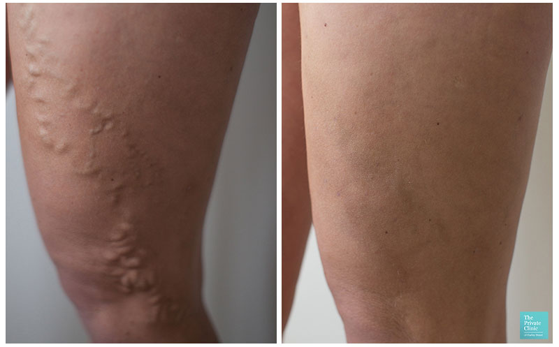 varicose vein removal surgery evla cost birmingham before after photos results 002