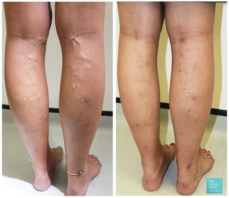 varicose vein removal surgery evla cost bristol before after photos results 001