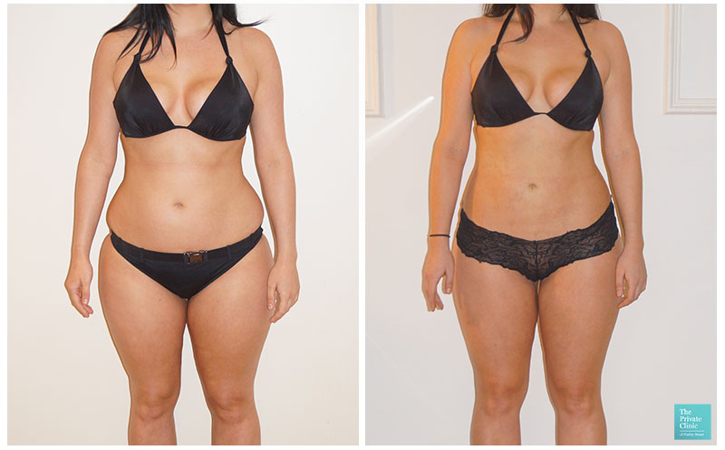 vaser liposuction female abdomen flanks thighs fat reduction removal before after results