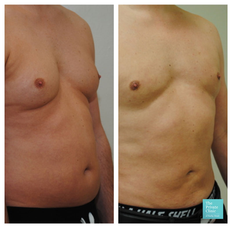 vaser liposuction male chest reduction abdomen tummy before after photo results the private clinic