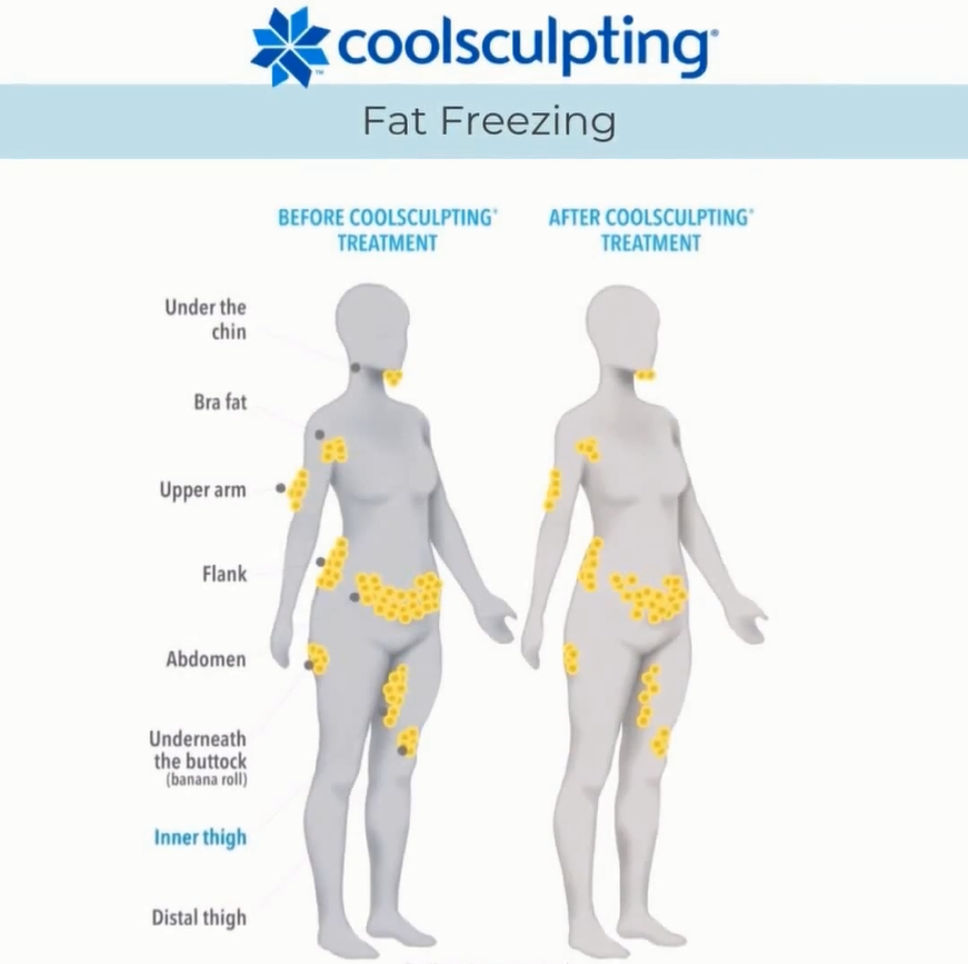 what areas can coolsculpting treat before after fat freezing results bristol