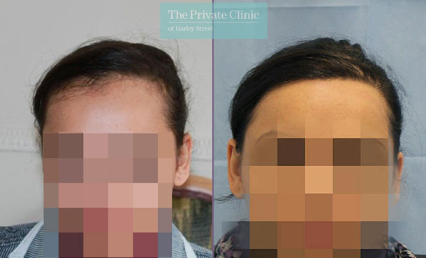 womens fue hair transplant before after photos uk results dr raghu reddy 041RR