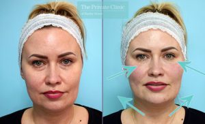 dermal filler treatment to tear trough, cheeks, mouth and chin results