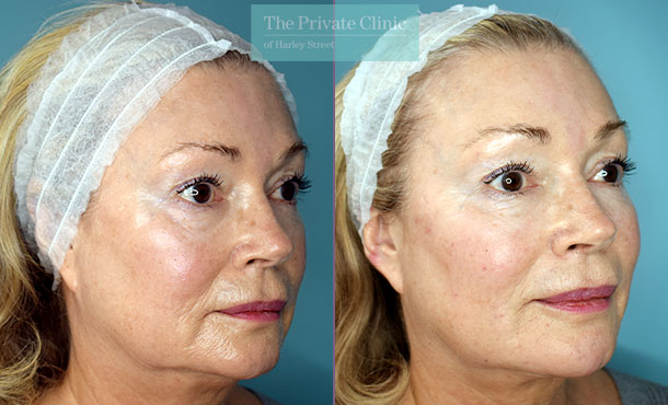 Fillers-injectables-before-after-results-angle-004HY