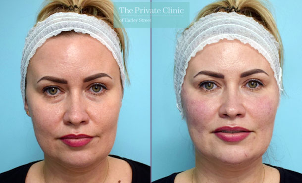 Fillers-injectables-before-after-results-front-003HHY