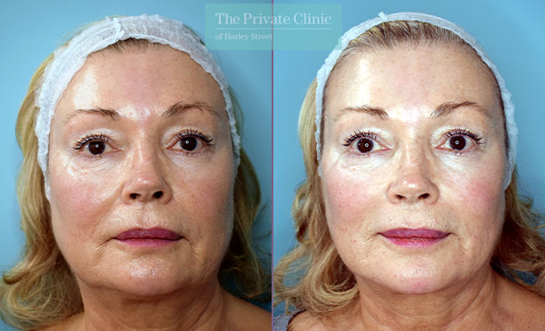 Fillers-injectables-before-after-results-front-004HY