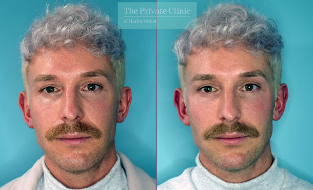 Fillers-injectables-before-after-results-front-005HHY