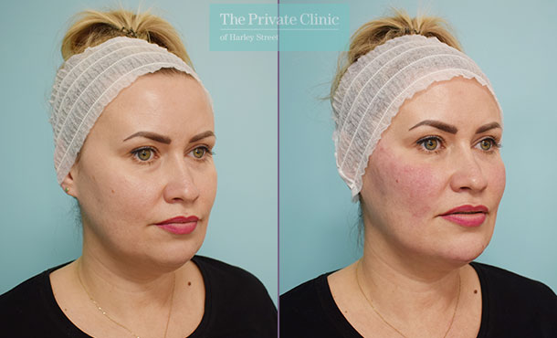 Fillers-injectables-before-after-results-side-003HHY