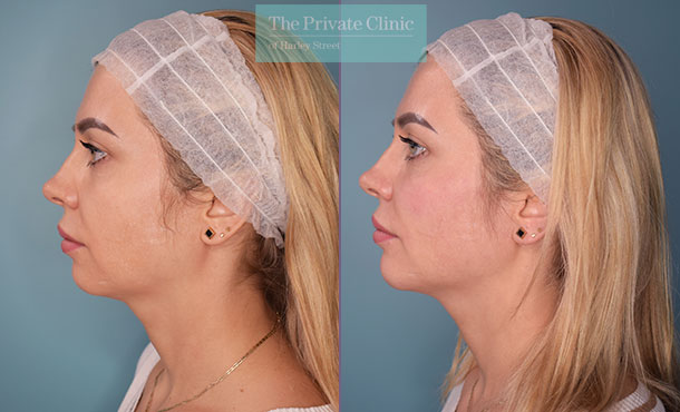 dermal filler treatment to cheek, mouth and jawline