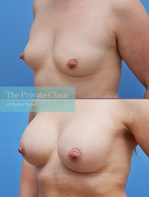Breast Augmentation before and after results showing increased breast size