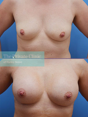 Before and after photo of patient after breast enlargement surgery showing an increase in breast size