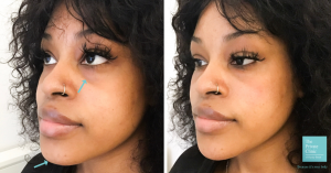 Photos of patient before and after chin filler showing a more defined jawline