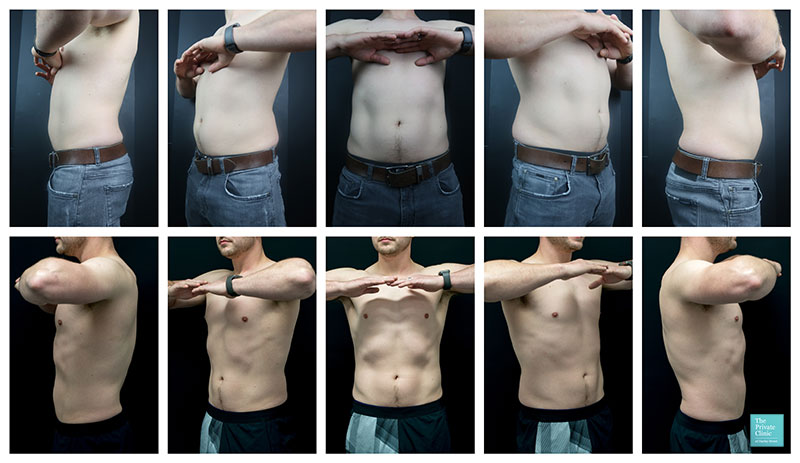 coolsculpting male abdomen before and after photos