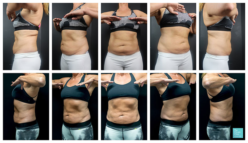 coolsculpting women stomach belly fat before and after photos