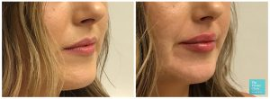 Photos showing before and after results of dermal lip filler with patient having much fuller lips after treatment