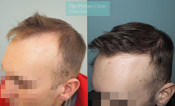 fue-hair-transplant–before-after-photo-results-mr-michael-mouzakis-side-023MM