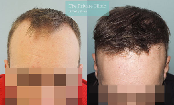 fue-hair-transplant-before-after-photos-results-mr-michael-mouzakis-front-023MM
