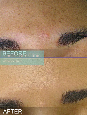 HydraFacial before and after results photo showing reduction in brown spots/pigmentation on the skin.