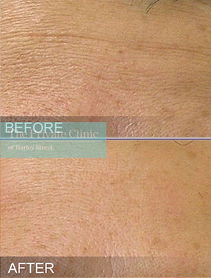 Hydrafacial treatment before and after photos showing reduction in fine lines and wrinkles