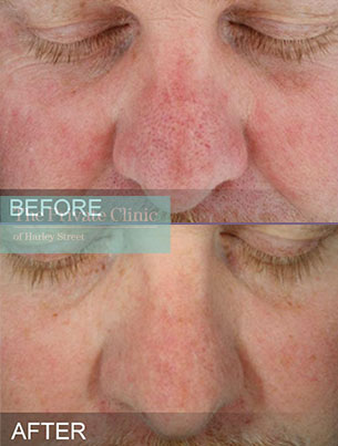 HydraFacial treatment before and after photos showing a reducion in redness and pore size on the male patients skin