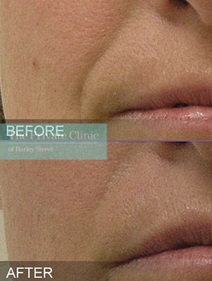 Hydrafacial treatment results showing a reduction in the nasolabial lines around the mouth
