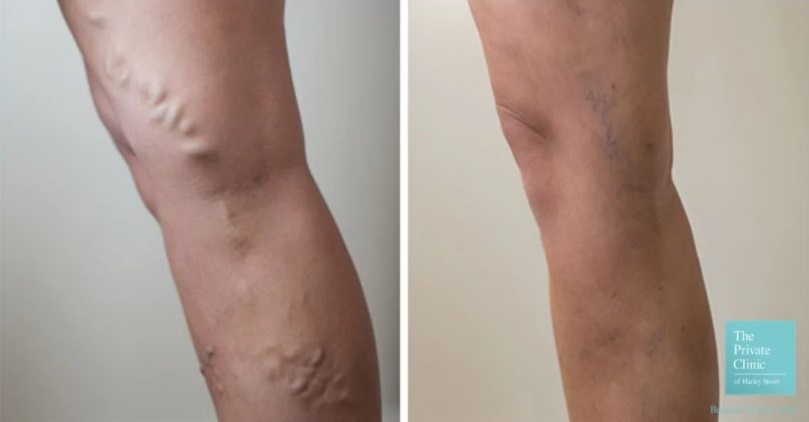 before and after photos of the result of varicose vein treatment with EVLA