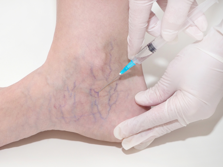 veins in ankle being injected during sclerotherapy treatment
